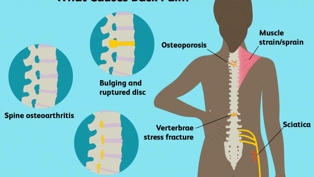 Explain back pain